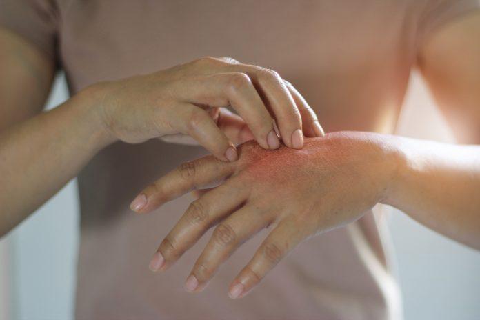 Cuáles Son Los Mejores Remedios Caseros Para El Eczema Nutroo